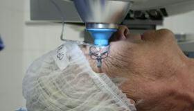 Prevrat v očnom lekárstve:  Zahodíme skalpely?