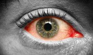 www.cas.sk: Problémy so zrakom ničia vaše sebavedomie! Čo všetko ničí vaše oči a čo im najviac škodí?