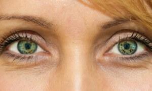 www.pluska.sk: Očná DILEMA: Je laserová operácia očí naozaj pre každého z nás?